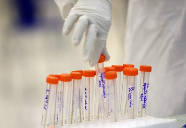 Người nhập cảnh vào An Giang phải tự trả chi phí xét nghiệm SARS-CoV-2